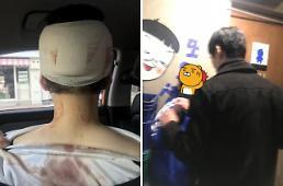 이수역 폭행 논란, 청와대 국민청원 남혐vs여혐 대결 장소로…신상공개·처벌해달라 맞청원