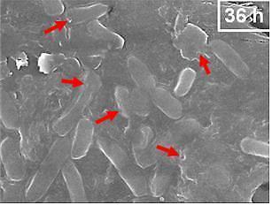 벌 독보다 항균 효과 뛰어난 미생물 발견