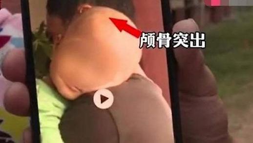 [포토] 중국 가짜 분유 속출? 엽기적으로 커져버린 머리