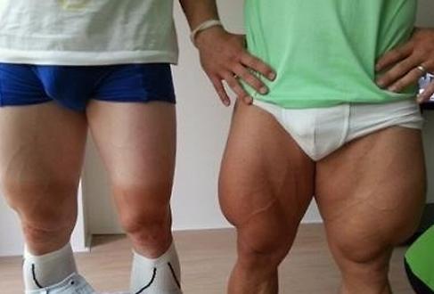 """拥有强健体魄是每位男生梦寐以求的理想身材。但如今,有名男子似乎健身过头,导致身体严重失调。 近日,在韩国某在线论坛上,一则题为""""肌肉男身材严重失调""""的帖子引发韩国健身一族的关注,帖子留言和转发量猛涨。 在公开的照片中吗,两名肌肉男赫然出现在面前。左边的肌肉男大腿结实,十分匀称。而右边的肌肉男似乎练过了头,大腿粗壮如腰部,比例严重失调。 对此,韩国网友纷纷评论称:""""这个大腿貌似也太粗了点?这要什么尺寸的裤子才能容得下这两条大腿呢?以后健身得悠着点了。"""" (亚洲"""