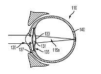 Googles inner-eye device patent unveiled