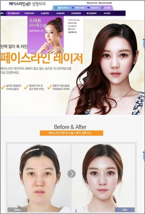 你所看到的前后对比照并非全部 韩9家整形医院涉嫌虚假宣传