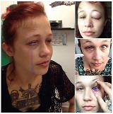 .Canadian Model tattooed her eyeball purple but she may get permanently blind.