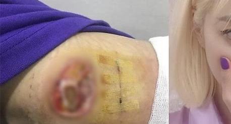 전 의협장이 그림으로 설명한 한예슬 의료사고 과정