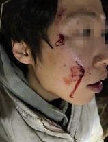 강형욱, 맹견 로트와일러 사건에 가해자 벌 받아야 분노
