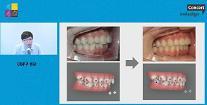 아이디치과 투명 치아교정 장비로 치아 전·후방 이동 가능
