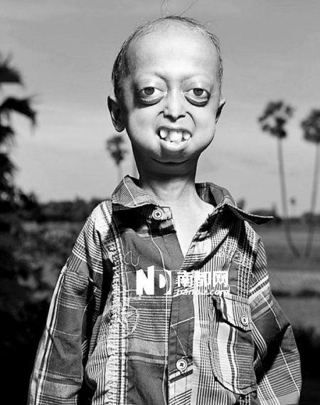 印度14岁少年拥有110岁身体