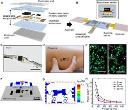 .Scientists develop device for mechano-acoustic recording from skin.