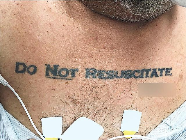 Unconscious man with Do Not Resuscitate tattoo passes away and sparks debate among doctors