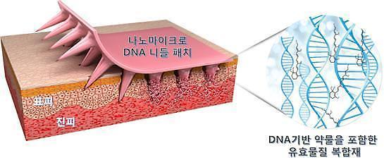 Research firm wins state approval to commercialize dissolvable microneedle patches