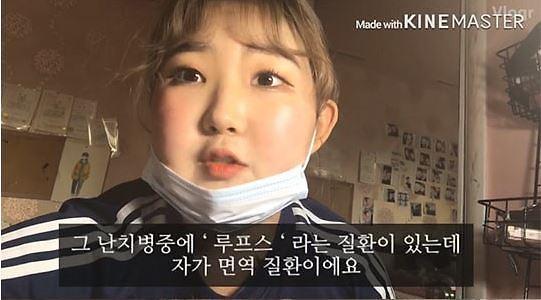 故 최진실 딸 최준희, 루프스병 고백…발병 원인은?