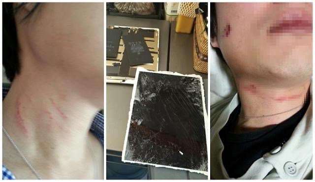 [포토] 조현아 남편 박씨가 공개한 폭행 증거자료