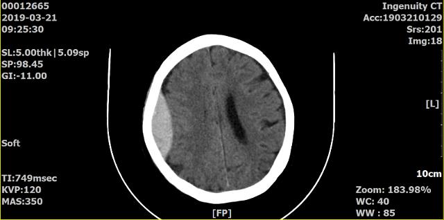 비에스종합병원, 강화군 최초로 뇌출혈 수술 성공