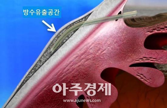 분당 차병원 국내 최초 녹내장 스텐트 삽입술 환자 결과 발표