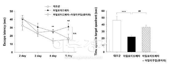 분당 차병원, 세계 최초 류마티스 관절염 치료제로 치매 치료효과 확인