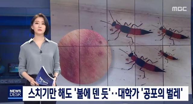 화상벌레 청딱지개미반날개 뭐길래…닿기만 해도 피부 화끈·상처