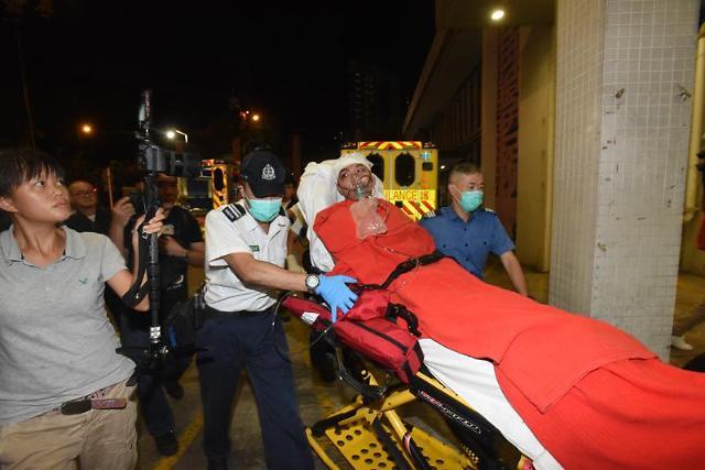 홍콩 시위 주도자, '쇠망치 공격' 백색테러로 중상