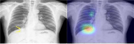 인공지능, 응급실에서 흉부X선 영상 의사보다 더 정확히 진단