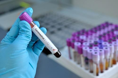 [코로나19] 항바이러스제 파빌라비르 치료제 될까... 中 정식 승인