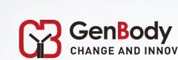 .韩企GenBody将对15国出口新冠抗原快检试剂盒.