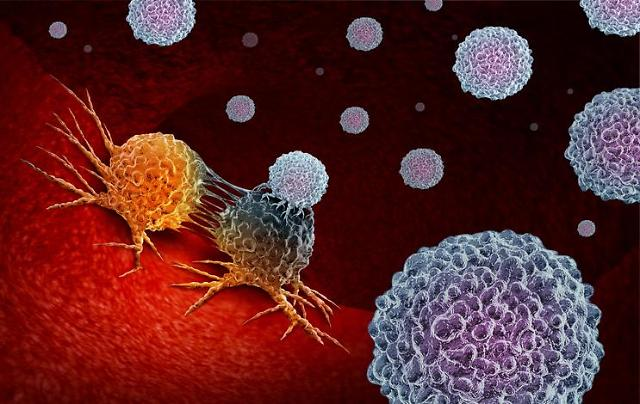 AI-based software for in vitro diagnosis authorized to diagnose prostate cancer