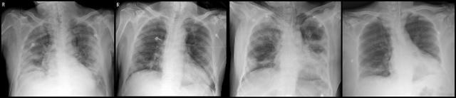 [코로나19] 코로나19 완치자 혈장 투여해 중증 폐렴 잡고 2명 완치 판정