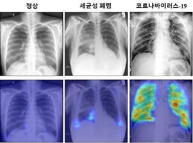 .State research institute develops more accurate AI-based chest X-ray COVID-19 diagnosis algorithm.