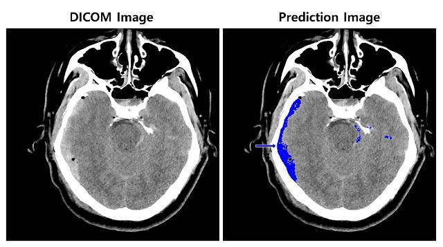 SK㈜ C&C, 전문의급 AI로 뇌출혈 영상 판독 상용화 나선다