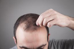 Viola verecunda extracts found to be effective in hair growth and hair loss control