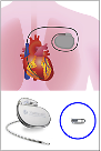 State hospital succeeds in inserting wireless pacemakers into hearts of bradyarrhythmia patients