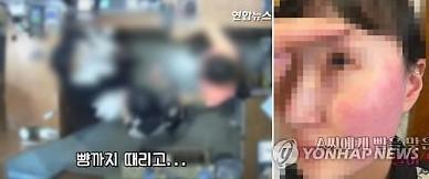 2차례 폭행 물의 벨기에 대사 부인, 오늘 한국 떠났다